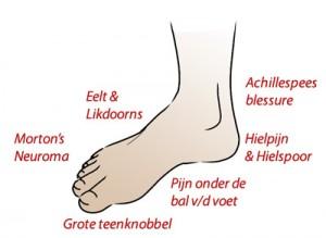 Kramp in voet oorzaak